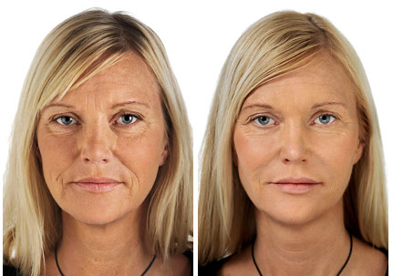 mesotherapy_before-after
