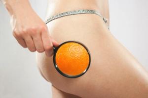 orange-peel-skin1